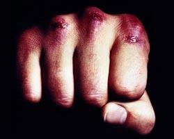 Пьяный красноярец набросился с кулаками на врача скорой помощи