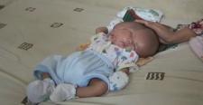 В Индонезии родился ребёнок с двумя лицами