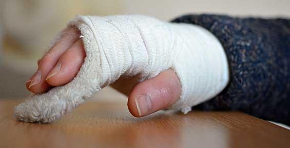 Агрессивный пассажир иномарки заявил, что полицейские сломали ему руку