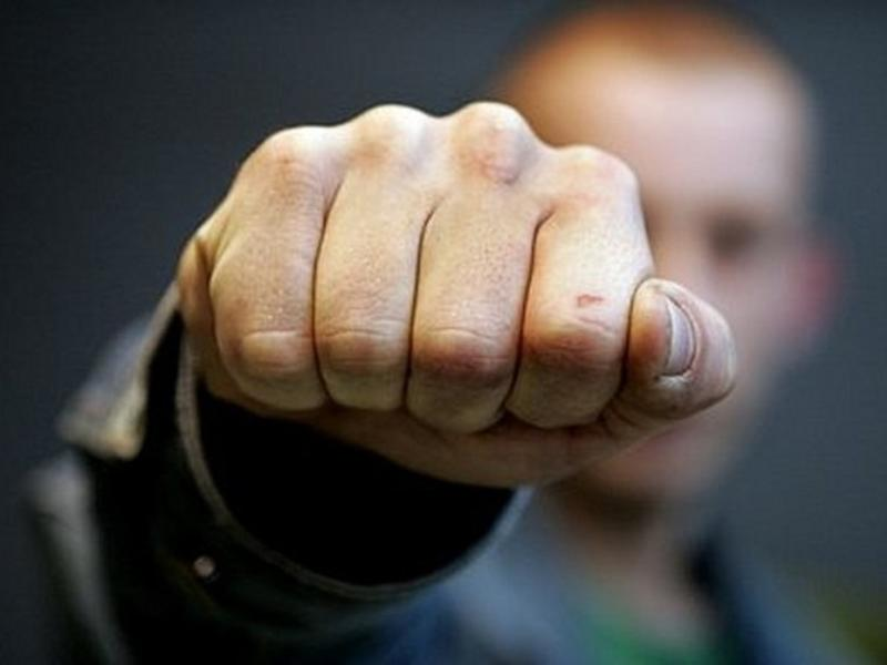 Читинцу, выбившему зубы бойцу Росгвардии, грозит до 10 лет тюрьмы